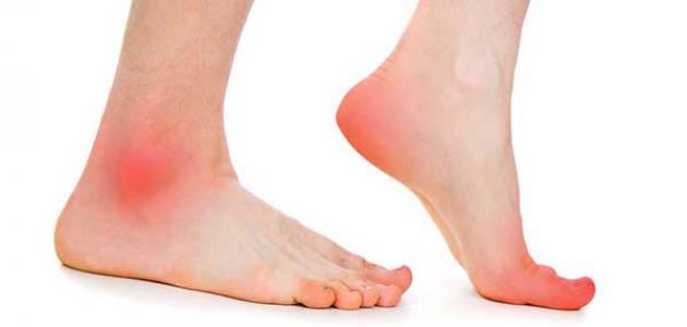 أسباب التهاب أعصاب القدم