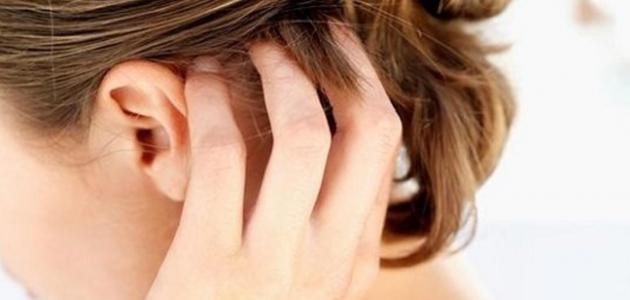 أسباب الحبوب في فروة الرأس