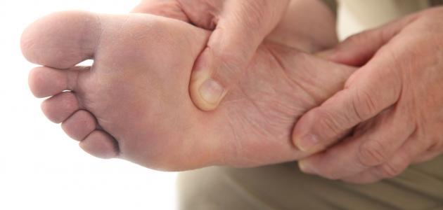 أسباب وأعراض مرض القدم السكري