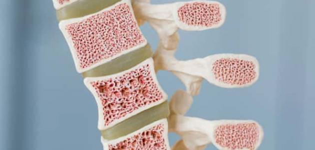 أعراض سرطان نخاع العظم