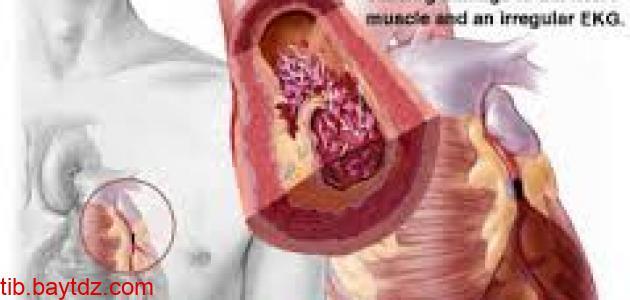 اعراض و مضاعفات التهاب العضلة القلبية