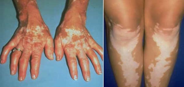 سرطان الجلد الميلانوما (التصبغي)
