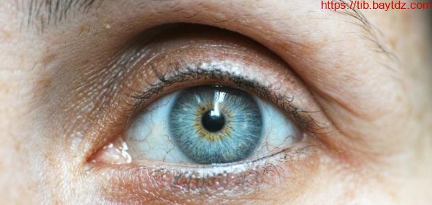 طرق علاج اصفرار العين