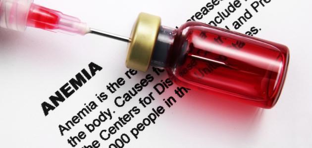 طرق علاج الأنيميا