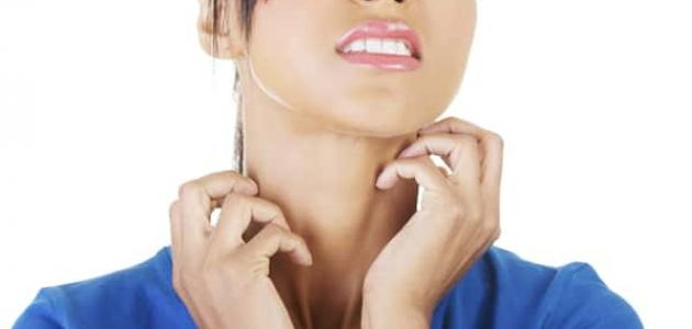 طرق علاج التينيا