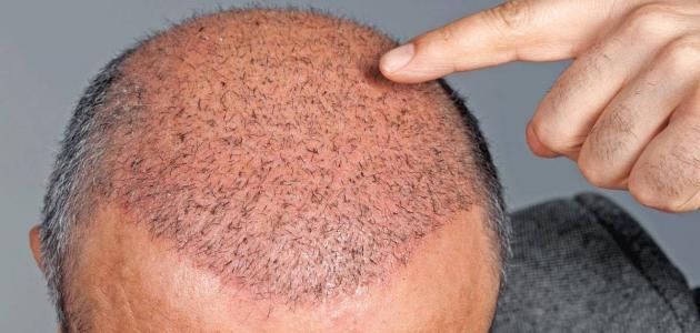 علاج التهاب الجريبات الشعرية