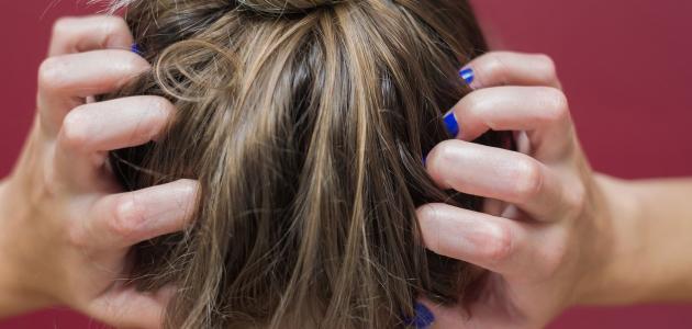 علاج فطريات الشعر