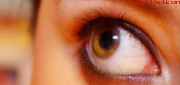 لفحة هواء العين أسبابها و علاجها