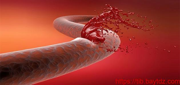 ما هي أعراض النزيف الداخلي
