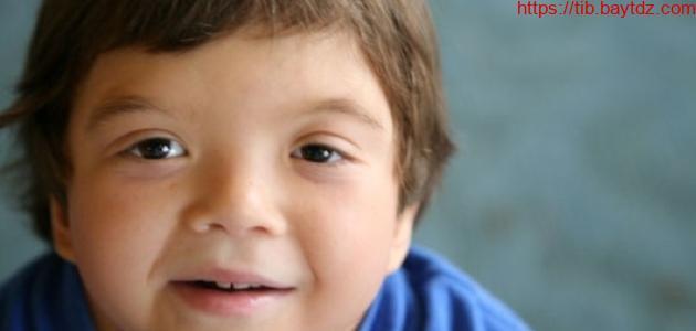 ما هي متلازمة نونان