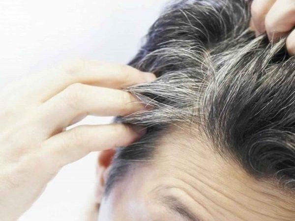 كيف تقلل ظهور الشعر الأبيض بأفضل الطرق