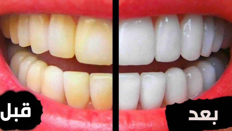 معلومات هامة عن تبييض الأسنان .. لاتفوتك