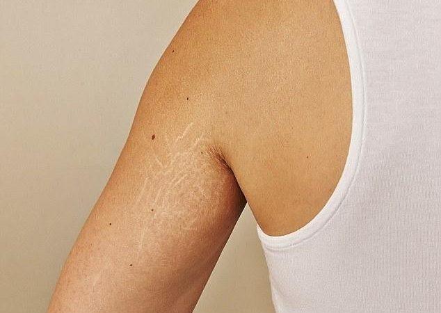 أسباب تمدد الجلد وطرق العلاج المختلفة