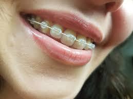 تقويم الأسنان.. انواعه ومميزاته وعيوبه