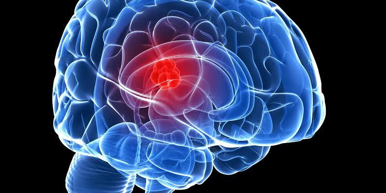 سرطان الدماغ .. تعرف علي الاعراض والاسباب والعلاج