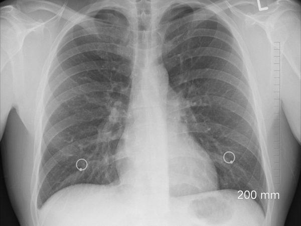مراحل سرطان الرئة .. اعراضه المبكرة والمتقدمة